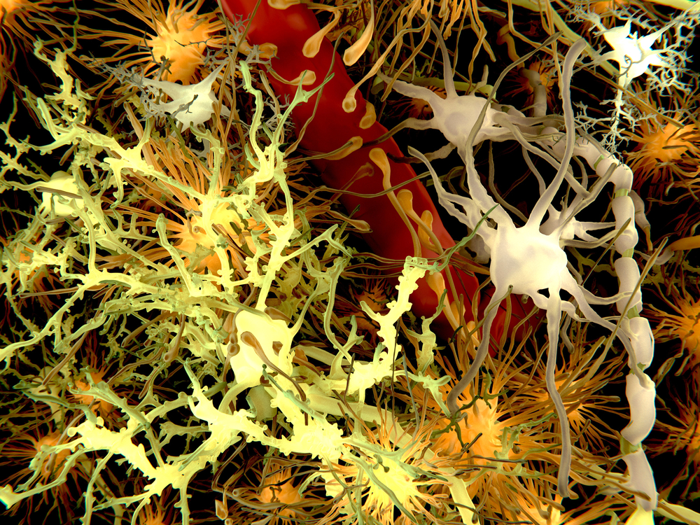 Researchers Targeting Astrocytes Discover Treatment Benefits in SMA-Induced Mice