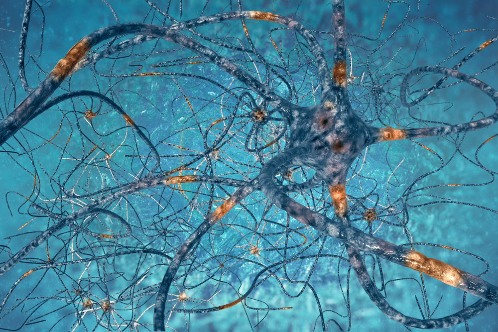 Motor Neurons in SMA Patients May Express Fewer Key Proteins