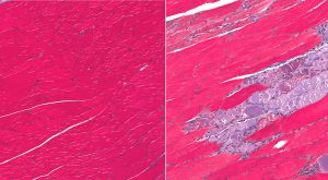 SMA Muscle Breakdown Differs with Severity in Mouse Study, but Precedes Neuronal Death