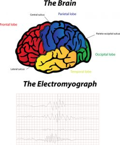 electromyography for SMA