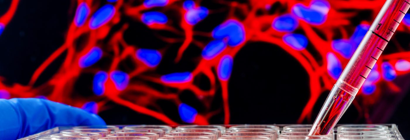 Steps Taken by Stem Cells in Becoming Neurons Identified in Study, Aiding Cell Replacement Therapies