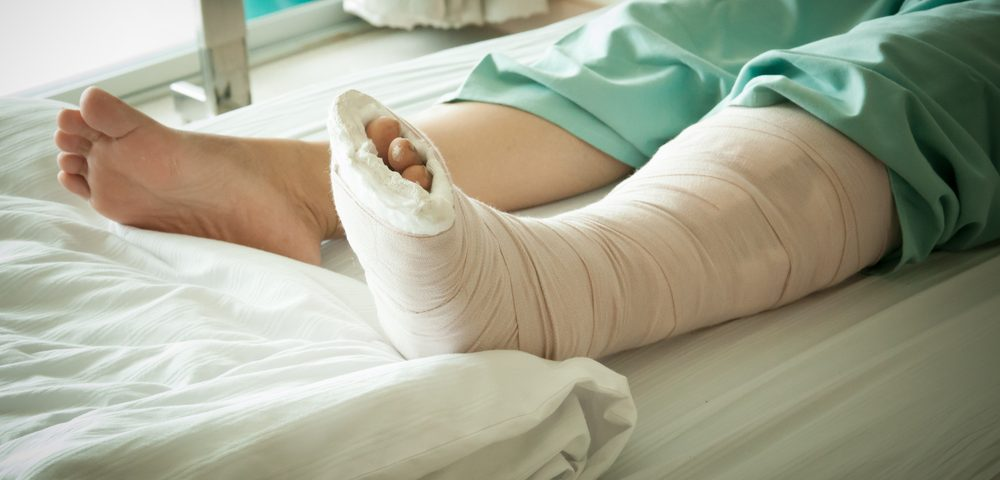 The Curveball, Part One: A Possibly Broken Leg