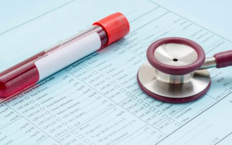 Muscle Waste Product Creatinine Might Be Used as SBMA Biomarker, Study Reports