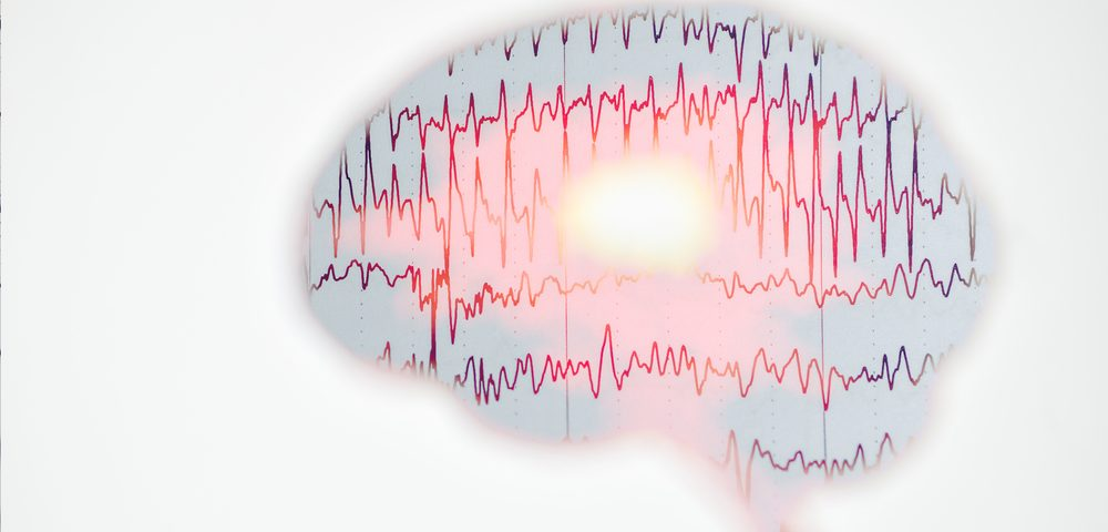 Rare Case of SMA Linked With Myoclonic EpilepsyDetailed in Report